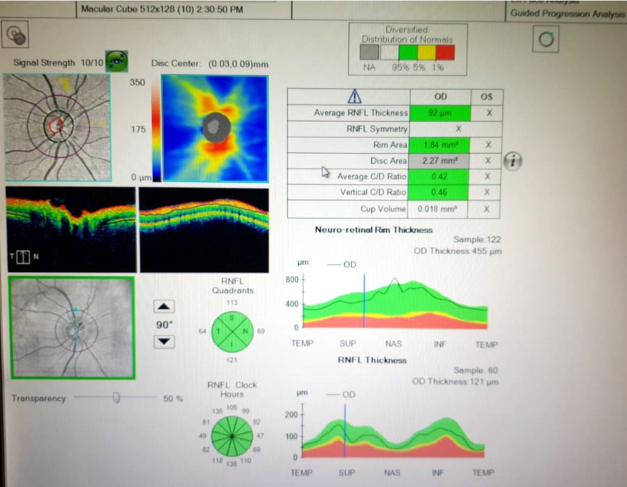 OCT Zeiss Cirrus 5000 nervo ottico