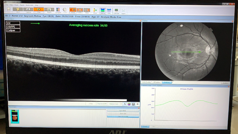 oct topcon 3d 2000 retina