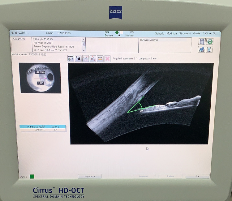 HD Angle OCT Zeiss Cirrus 400